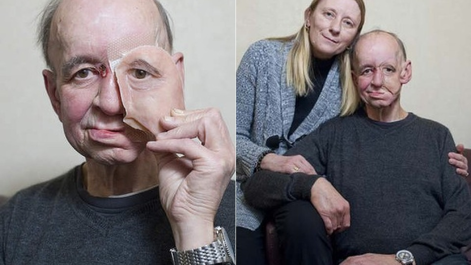 The 3D Printed Prosthetic Face